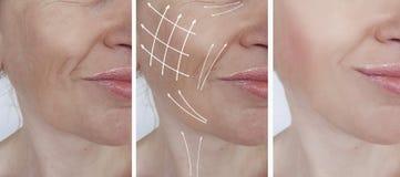 Cosmetology ρυτίδων γυναικών αφαίρεση beautician δερματολογίας ανελκυστήρων διαφοράς πριν και μετά από τις διαδικασίες, βέλος στοκ εικόνα