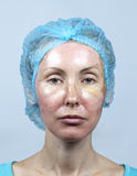 cosmetology Новая кожа после химического шелушения, красноты из-за слишком быстрой уничтожающ старый слой стоковое фото