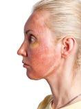 Cosmetology. Условие кожи после химического шелушения стоковое изображение rf