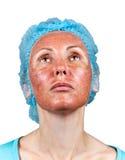 Cosmetology. Chemische Schale. Grenze zwischen der verarbeiteten und gesunden Haut auf einem Hals. Abschluss oben lizenzfreie stockbilder