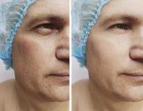 Cosmetology för tillvägagångssätt för behandling för korrigering för manskrynklor före och efter royaltyfri bild