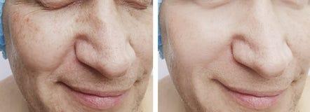 Cosmetology för tillvägagångssätt för manskrynklor före och efter arkivbild