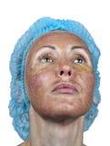 cosmetology Haut im Verlauf der Ablehnung nach einer tiefen chemischen Schale Grenze zwischen der verarbeiteten und gesunden Haut stockfotos