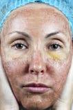 cosmetology Haut im Verlauf der Ablehnung nach einer tiefen chemischen Schale Pergamenthaut vor Rückweisung lizenzfreie stockbilder
