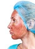 Cosmetology. Hautbedingung nach chemischem Schalentca.top brannte Schicht. Schließen Sie oben auf einem weißen Hintergrund lizenzfreie stockfotografie