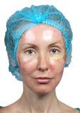Cosmetology. Neue Haut nach einer chemischen Schale, eine Rötung wegen zu schnellen, eine alte Schicht löschend. stockfotos