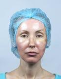 cosmetology Neue Haut nach einer chemischen Schale, eine Rötung wegen zu schnellen, eine alte Schicht löschend stockfoto