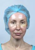 cosmetology Neue Haut nach einer chemischen Schale, eine Rötung wegen zu schnellen, eine alte Schicht löschend lizenzfreie stockfotos