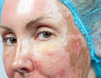 Cosmetology. New skin after a chemical peeling Stock Image