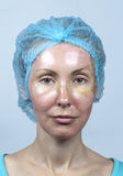 cosmetology Nuova pelle dopo una sbucciatura chimica, un rossore a causa di troppo veloce cancellando un vecchio strato fotografie stock libere da diritti