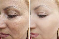 Cosmetology skinrejuvenation ρυτίδων προσώπου γυναικών υπομονετική διόρθωση θεραπείας αναγέννησης αποτελέσματος πριν και μετά από στοκ εικόνες με δικαίωμα ελεύθερης χρήσης