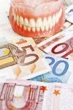 Costi della protesi dentaria Fotografie Stock