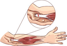 Cotovelo de tênis - rasgue no tendão comum do extensor do braço Imagens de Stock Royalty Free