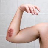 Cotovelo raspado - 5 dias após o acidente. Fotos de Stock Royalty Free