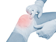 Cotton bandage over a wound on knee. Royalty Free Stock Photography