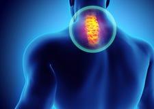 Cou douloureux - rayon X squelettique d'épine de cervica, illustration 3D Photos stock