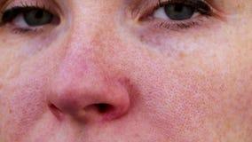 Couperose στη μύτη ενός νέου ελκυστικού κοριτσιού Τριχοειδής έννοια επεξεργασίας πλέγματος Ακμή στο πρόσωπο Εξέταση από έναν γιατ φιλμ μικρού μήκους