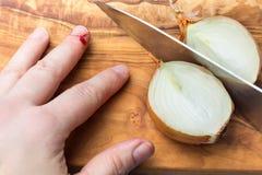 Coupez la blessure, coupez en doigts à l'oignon Photo stock