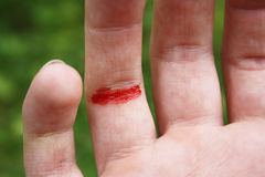 Coupez le doigt Photographie stock