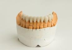 Couronne dentaire en céramique image libre de droits