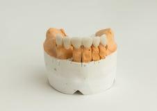 Couronne dentaire en céramique images libres de droits