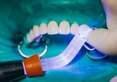 Couronnes avant en céramique, fond vert 8 placages dentaires d'unités photos stock