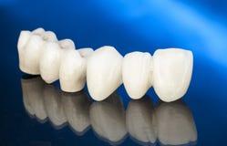 Couronnes dentaires en céramique gratuites en métal Photos stock