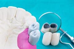 Couse vers le haut de proth?se et d'outils dentaires photos libres de droits