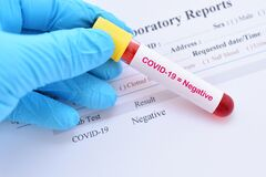 Free COVID-19 Negative Result With Blood Sample Tube Stock Images - 216872234