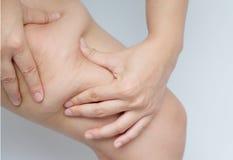 Coxas fêmeas dos pés com celulites Problema de pele, cuidado do corpo, sobre fotos de stock royalty free