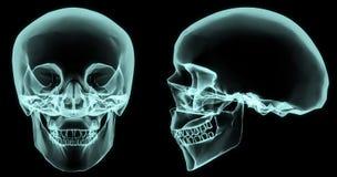 Cráneo de la radiografía stock de ilustración