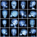 Cráneo de la radiografía de la colección (gente asiática) Fotos de archivo