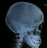 Cráneo de la radiografía de la película del ser humano Fotografía de archivo libre de regalías
