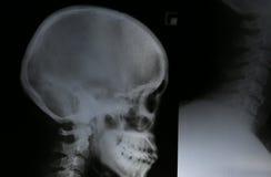 Cráneo de la radiografía de la película del ser humano Imagen de archivo libre de regalías