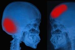 Cráneo de la radiografía de la película del ser humano Fotos de archivo libres de regalías