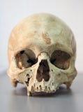Cráneo del hombre Foto de archivo libre de regalías