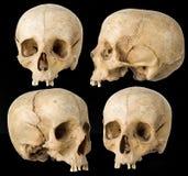 Cráneo humano Foto de archivo libre de regalías
