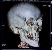 Cráneo, reconstrucción de la CT-exploración, anatomía Foto de archivo