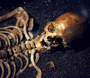 Cráneo y huesos humanos. Imágenes de archivo libres de regalías