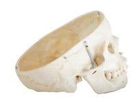 Crâne avec le dessus outre du côté Profle Photo libre de droits