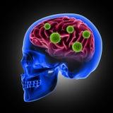 crâne 3D masculin avec des cellules de virus attaquant le cerveau Photo libre de droits