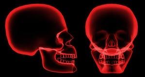 Crâne de rayon X Photographie stock libre de droits