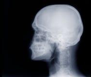 Crâne de rayon X Images libres de droits