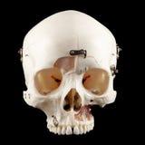 Crâne humain anatomique Images stock
