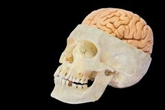 Crâne humain avec des cerveaux sur le fond noir images stock
