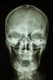 Crâne humain normal Photographie stock