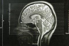 Crânes de rayon X d'EEG Image libre de droits