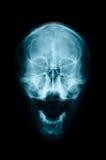 Crânio AP do raio X do filme: mostre o crânio do ser humano normal Imagens de Stock