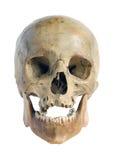 Crânio da pessoa. imagens de stock royalty free