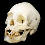 Crânio humano, três quartos de vista foto de stock royalty free